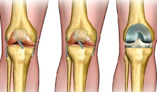 the degree of development of osteoarthritis of the knee joint