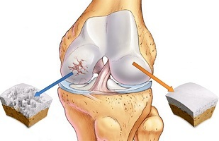 what is knee arthrosis