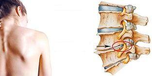mechanism of development of cervical osteochondrosis